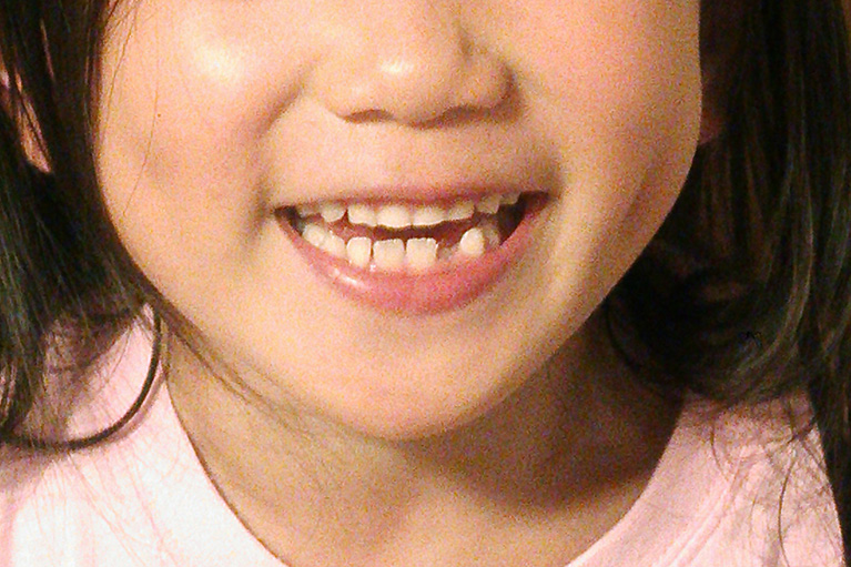 すきっ歯になる原因について
