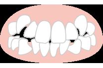 八重歯・叢生(そうせい・デコボコ)の矯正