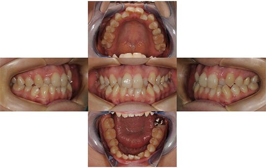 叢生 非抜歯ケース 治療前