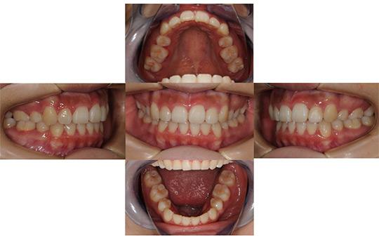 叢生 抜歯ケース 治療後