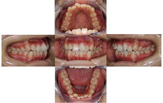 叢生 抜歯ケース 治療前
