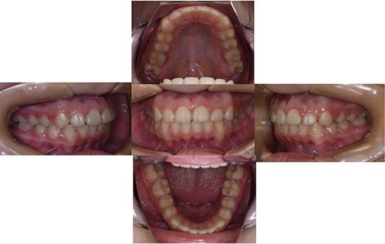 前突 非抜歯ケース 治療後