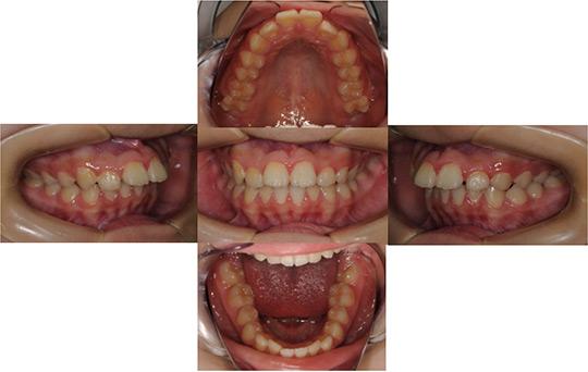 前突 非抜歯ケース 治療前