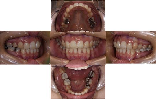 前突 抜歯ケース 治療後