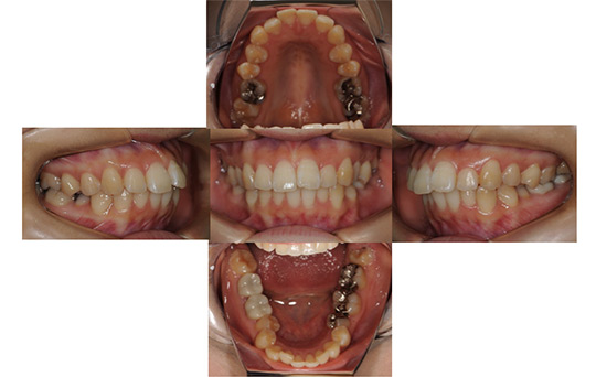前突 抜歯ケース 治療前