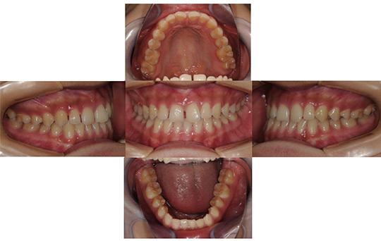 すきっ歯 非抜歯ケース 治療前