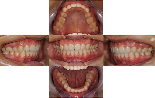 過蓋咬合 抜歯ケース 治療後