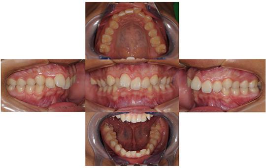 過蓋咬合 抜歯ケース 治療前