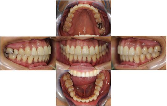 開咬 非抜歯ケース 治療後