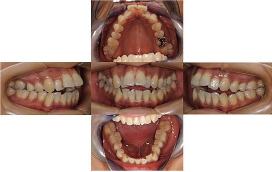 開咬 非抜歯ケース 治療前