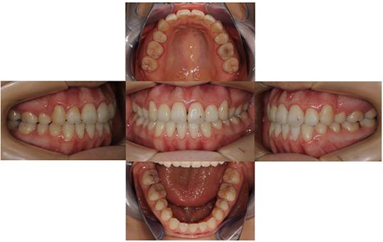 開咬 抜歯ケース 治療後