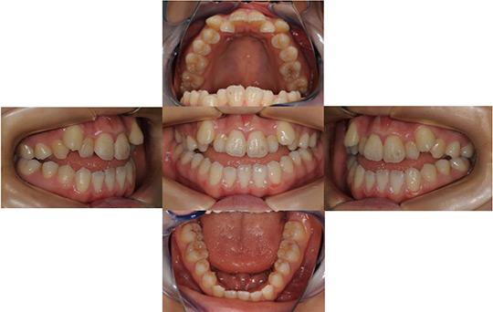 開咬 抜歯ケース 治療前