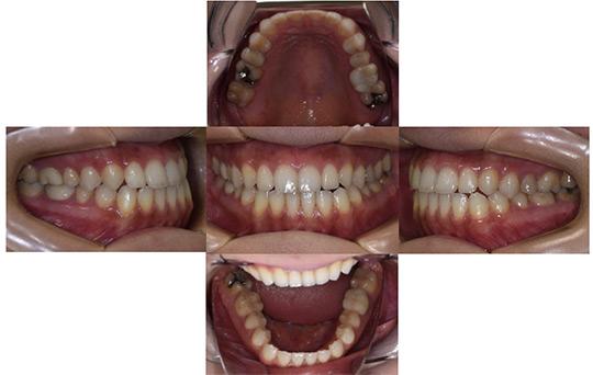 受け口(反対咬合) 非抜歯ケース 治療後
