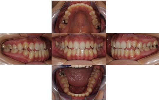 受け口(反対咬合) 非抜歯ケース 治療前