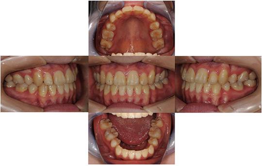 受け口(反対咬合) 抜歯ケース 治療後