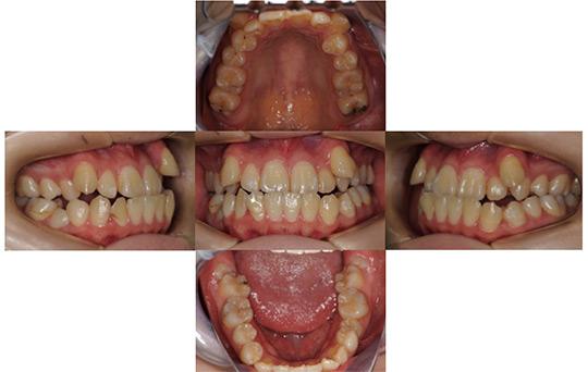 受け口(反対咬合) 抜歯ケース 治療前